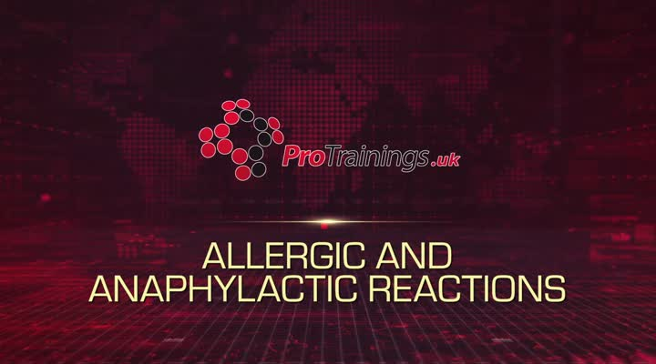 Allergic Reactions and Anaphylaxis