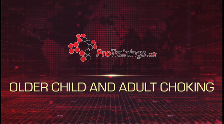 Older Child and Adult Choking