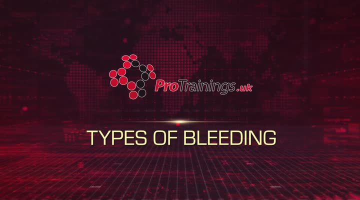 Types of Bleeding