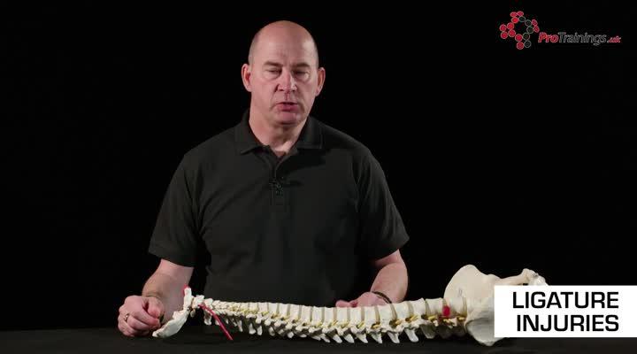 Ligature Injuries