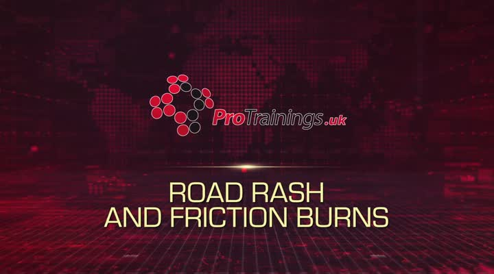 Road Rash and Friction Burns