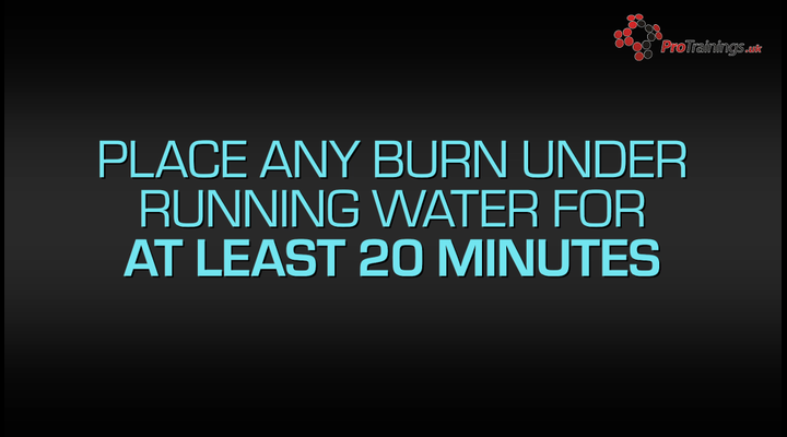 Burns and burn kits
